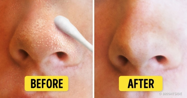 natural ways to remove blackheads and whiteheads